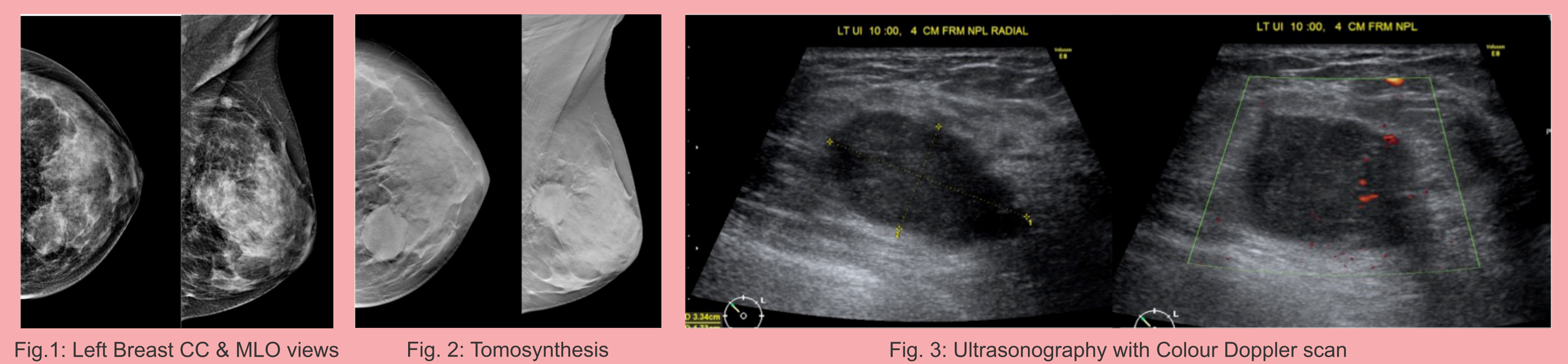 A 33 years old lady with lump and pain in the left breast.