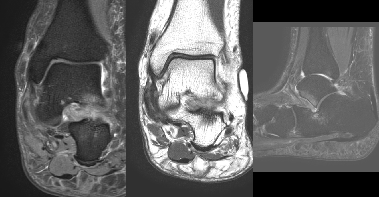 A 45-year man with dull pain along the anterolateral aspect of ankle for around 6 months, following a twist at the ankle.<br>Fig.1: PDFS, T2W Coronal and T2 Fat sat sagittal images