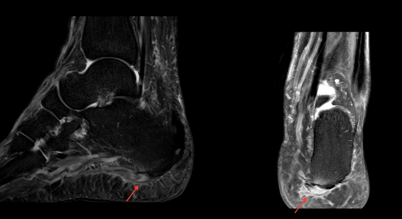 A 50 year old man with pain in heel.<br>Fig. 1: Sagittal and Coronal fat sat PD images