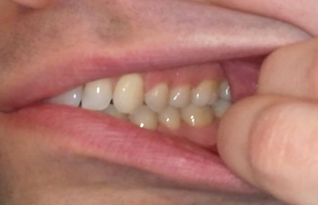 Dents coté gauche