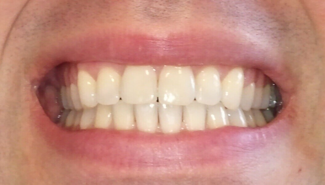 Dents de face