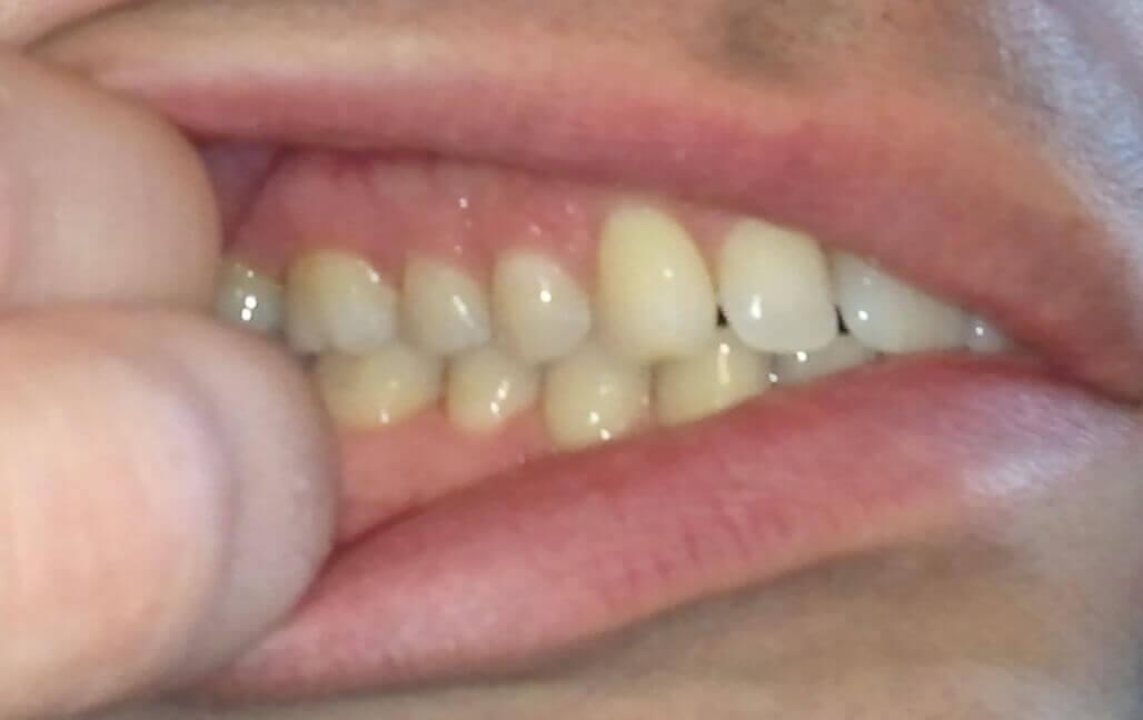 Dents coté droit
