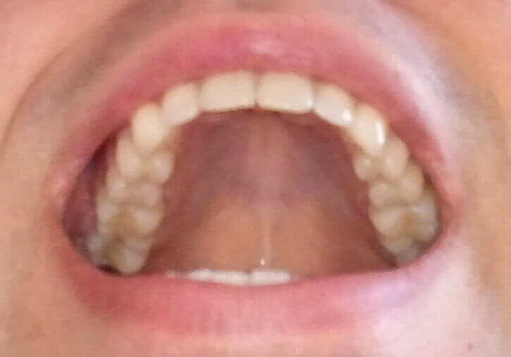 Dents supérieures