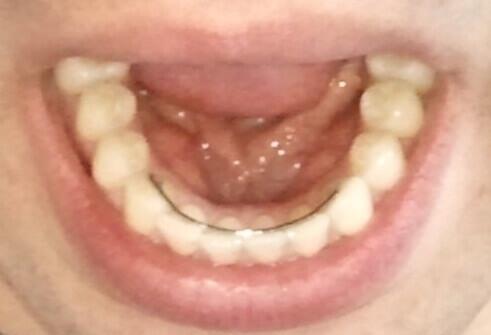 Dents inférieures