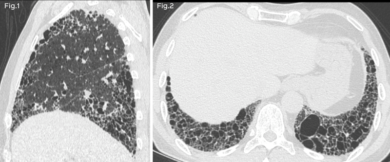 A 70-years old man, ex-smoker with gradually progressive breathlessness. He has no other risk factors and does not have any other systemic abnormality.<br>Fig. 1: Fig. 1: Axial HRCT<br>Fig. 2: Sagittal HRCT