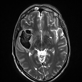 Figure 1. The first MRI images of the patient, taken at the private facility.<br><br>Figure 1A. T2-weighted image, showing the right temporal hemorrhage, with a maximum diameter of 6 cm, and at least two components of slightly different ages. A large aneurysm at right MCA bifurcation can also be seen.